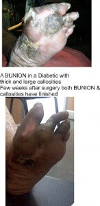 BUNION with CALLUS