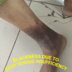 DEEP VENOUS INSUFFICIENCY with leg blackening , leg pain at night , varicose ulcer , venous stasis dermatitis , leg ulcers , venous stasis ulcer , venous stasis , venous ulcer , cellulitis leg , stasis dermatitis , leg cramps at night , Varicose Veins Treatment , leg swelling , leg muscles , leg cramps , lower leg pain , cellulitis , varicose veins , eczema , skin ulcer , VENOUS ULCER WITH DVI , BLOOD CLOT IN LEG