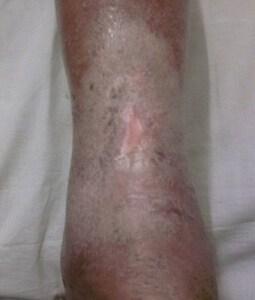 DIABETIC FOOT CLINIC , DIABETIC FOOT SURGEON HYDERABAD