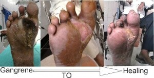 Diabetic Foot Gangrene