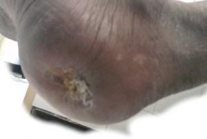 Diabetic Foot Ulcer Heel
