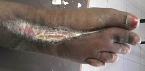 FOREFOOT GANGRENE DIABETIC FOOT ULCER 1