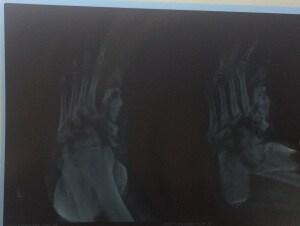 CHARCOT FOOT , DIABETIC FOOT ULCER , DIABETIC FOOT TREATMENT , GANGRENE