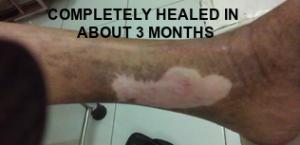 Leg Ulcer RA Healed