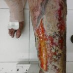 leg pain at night , varicose ulcer , venous stasis dermatitis , leg ulcers , venous stasis ulcer , venous stasis , venous ulcer , cellulitis leg , stasis dermatitis , leg cramps at night , Varicose Veins Treatment , leg swelling , leg muscles , leg cramps , lower leg pain , cellulitis , varicose veins , eczema , skin ulcer , restless leg syndrome, leg pain , blood clot in leg ,