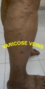 VARICOSE VEINS , venous stasis ulcer , venous stasis , venous ulcer , cellulitis leg , stasis dermatitis , leg cramps at night , Varicose Veins Treatment , leg swelling , leg muscles , leg cramps , lower leg pain , cellulitis , varicose veins , eczema , skin ulcer , restless leg syndrome, leg pain , blood clot in leg ,