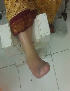 DIABETIC FOOT CLINIC , diabetes foot care , foot ulcer, diabetic foot treatment , diabetic ulcer , diabetic footwear , diabetic foot clinic hyderabad(india)