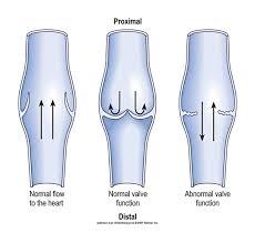 perforators abnormal