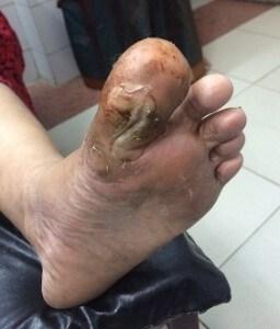 Diabetic toe ulcer