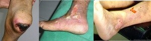 gangrene, eczema, diabetic foot