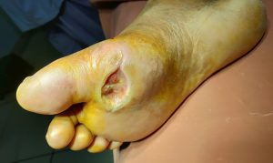 A commonly occurring diabetic foot ulcer, not very amenable to treatment